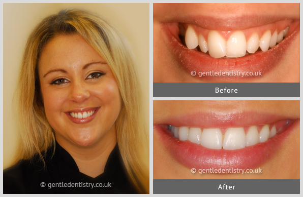 Experience The Six Month Smiles Braces Transformation